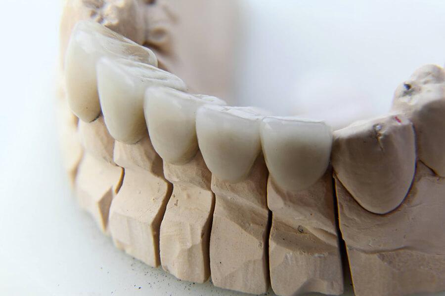 Protesi dentarie - Dentiere